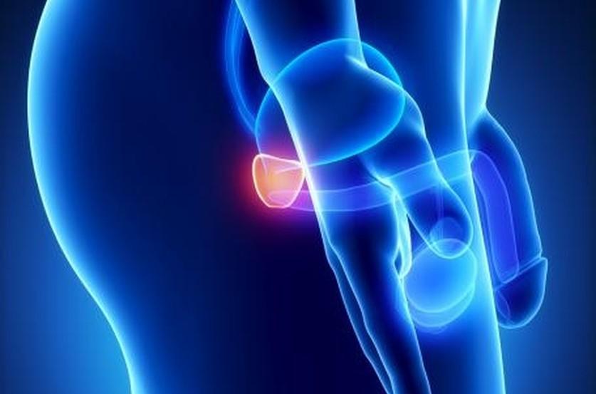 Comment reconnaître et traiter un cancer de la prostate